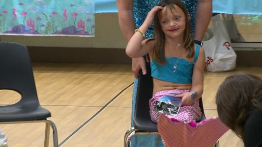 Boston Children's Hospital patient becomes mermaid for a day