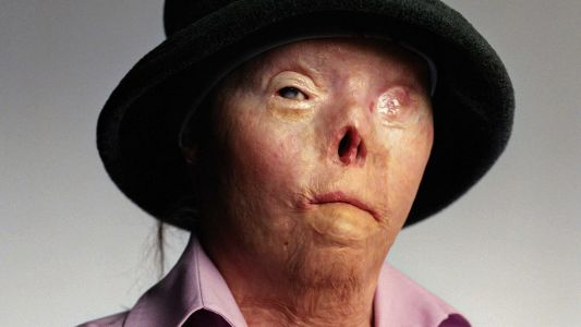 Woman who suffered horrific burns, featured on 'Faces of Drunk Driving' campaign dies