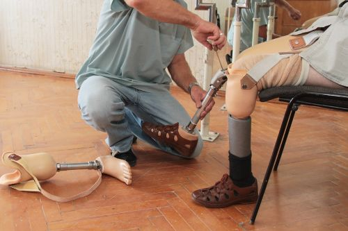 Vet whose prosthetic legs were repossessed is getting new pair