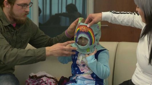 Special masks helps make radiation therapy less intimidating for children