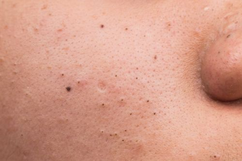 Here are year's best blackhead popping videos - so far