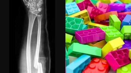 Lego for bones? Scientists develop method for repairing fractures using 3D-printed bricks inspired by popular toy