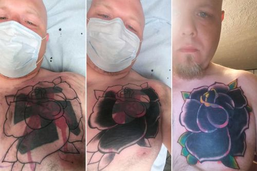 Former white supremacist gets swastika tattoo covered up in support of Black Lives Matter