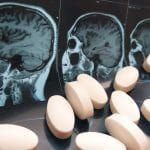 Lab Findings Hint that BP Med Could Impact Alzheimer's