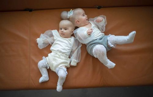 'Really happy babies': Twins conjoined by heads successfully separated