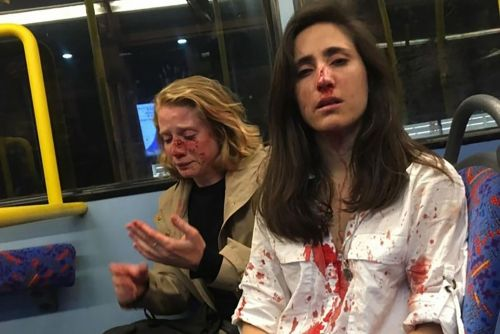 Lesbian couple assaulted on bus: Attackers viewed us as 'sexual objects'