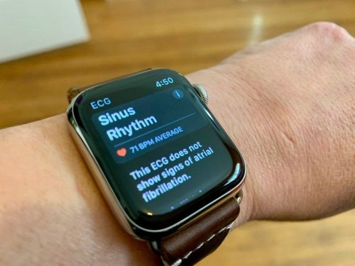 Apple Watch may miss AFib in as many as 59% of cases