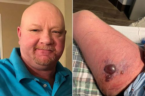 Man 'fighting for his life' after contracting flesh-eating bacteria on kayaking trip