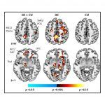 Early, Regular Cannabis Use Seen to Alter Brain Region Tied to Cognitive Control