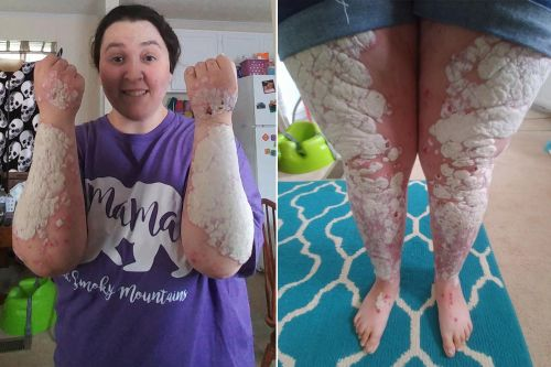 Woman's psoriasis one of 'worst cases' docs have seen, scaly plaques cover 90% of body