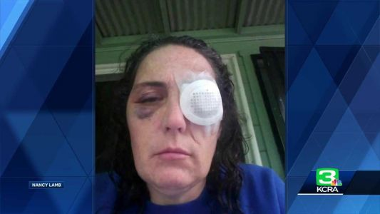 Couple attacked while doing community work in Stockton