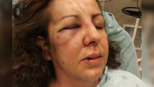 Woman going to her 16-year-old daughter's school to report bullying says she was attacked by teens