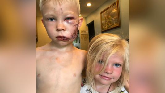 6-year-old boy saves younger sister from charging dog