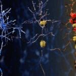 New AI Tool Promises Faster, More Accurate Alzheimer's Diagnosis