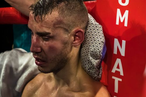 Scary injury forces boxer Maxim Dadashev into brain surgery