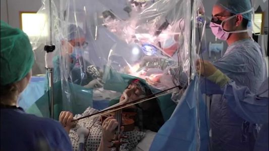 Patient plays violin to save her music as surgeons remove brain tumor