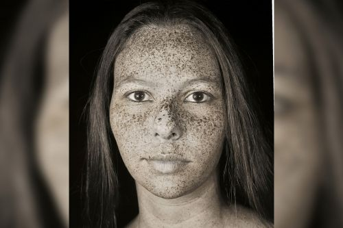 Striking ultraviolet portraits reveal skin imperfections invisible to human eye