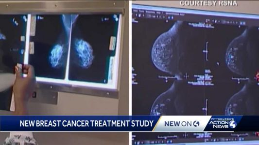 'Sometimes less is better:' Study looks at treatment of breast cancer patients over 70