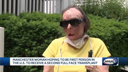 Woman becomes 1st person in US to receive a 2nd face transplant