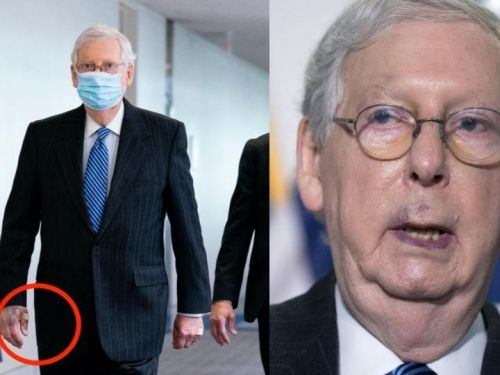 'Of course not': McConnell responds to questions about whether there are health issues the public should be warned about concerning his bruised hands