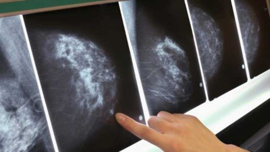 Computer model may be future of diagnosing breast cancer, researchers say