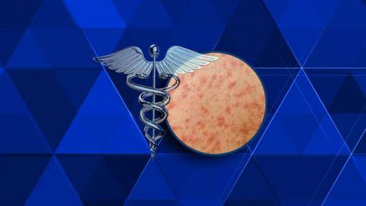 Case of measles confirmed in Chicago
