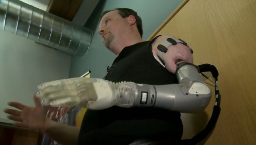 Amputee finds hope with cutting-edge prosthetic developed in NH