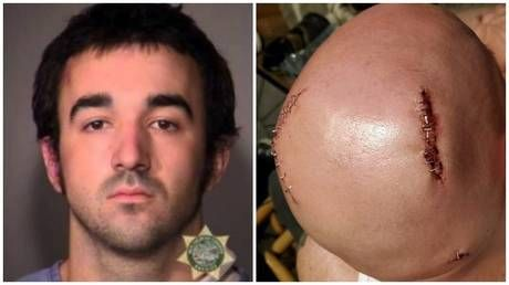 'Antifa fighter' indicted for assault over Portland violence that savaged man's scalp