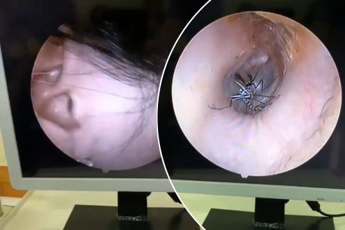 Mosquito plucked out of woman's ear in shocking footage