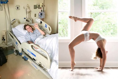 Woman suffers stroke after tearing artery during yoga pose