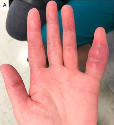 Woman's swollen pinky finger was rare sign of tuberculosis, doctors say
