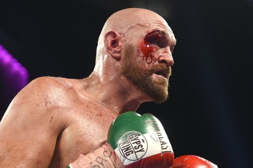 3 tactics the Tyson Fury team can use if they're worried his horrific cut will reopen and lose him the Deontay Wilder fight