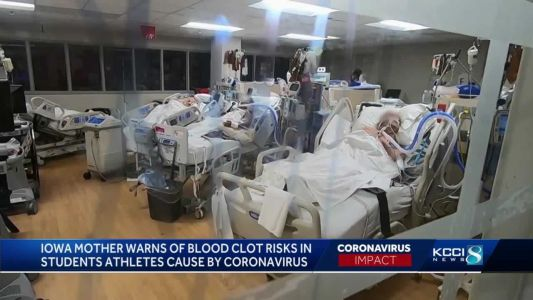 Doctors warn of possible lasting conditions in student-athletes who've had COVID-19