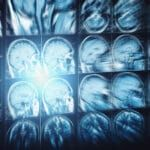 New Brain Scan Study Could Help Find Best Therapy for OCD