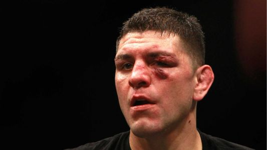 Nick Diaz arrested on domestic violence charges after allegedly choking woman