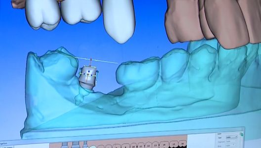 Made in Mass company using 3D technology to help improve smiles