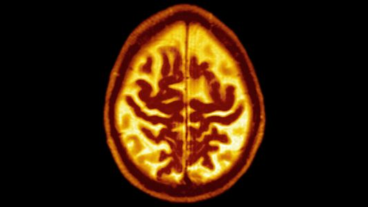 Regular aerobic exercise may slow progression to Alzheimer's for those most at risk