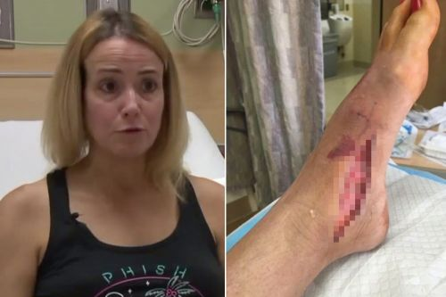 California woman contracts flesh-eating bacteria without going in water