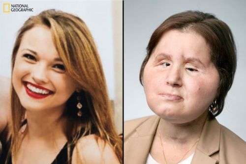 Suicide survivor gets 'ultimate second chance' after historic face transplant