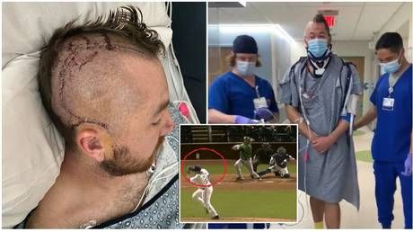 Baseball star Zombro 'can't wait to get back out there' as he shows scars from brain surgery after being hit by ball