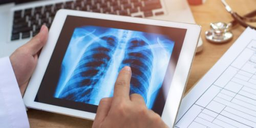 DeepScribe raises $5.3M to transcribe medical notes with AI