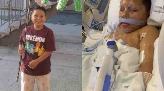 Compton boy loses arm after neighbor hands him firework on 10th birthday