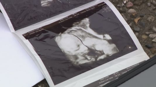 Couple's lost ultrasound images found in used car, returned years later