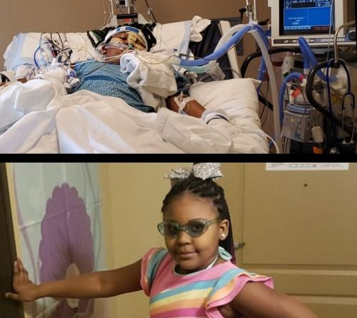 Family Of Girl Burned In Fridley Car Fire Seeks Help With Medical Expenses