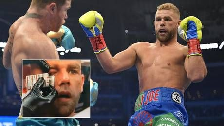 'Didn't feel out of my league': Saunders vows to return in first statement since Canelo loss as he details ugly extent of injuries