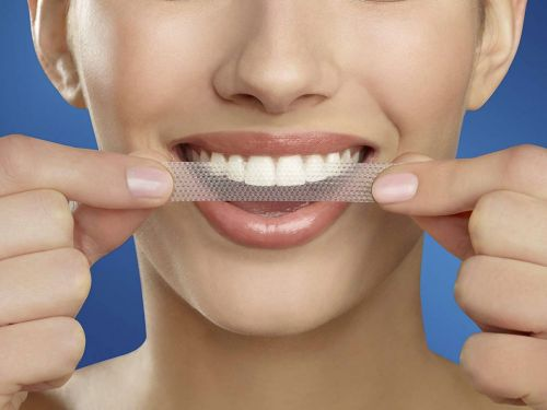 Crest Whitestrips are a surprisingly great deal for Prime Day 2019 - here's what you need to know