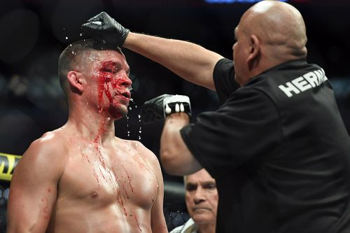 Jorge Masvidal's team channels 'Scarface' in official response to Nick Diaz