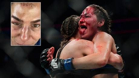 'Hard as nails': Blood-soaked UFC fighter & OnlyFans star Jessica Eye STICKS OUT TONGUE after suffering horror wound