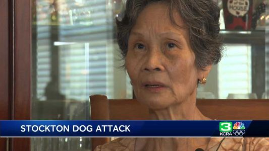 'I was terrified': Woman recounts dog attack at Stockton park during retirement celebration