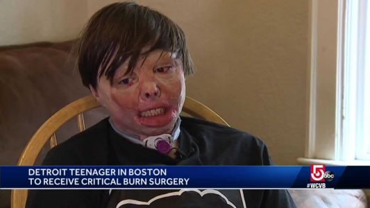 Teen awaits life-changing burn surgery at Shriners after story goes viral